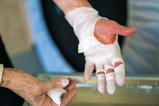 Ergotherapie Grevenbroich Hand Paraffinbad