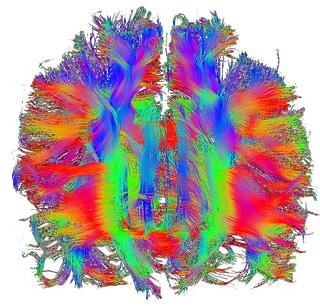 Studie Impulsives Verhalten und Neurofeedback-Grevenbroich 1