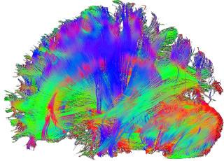 Studie Impulsives Verhalten und Neurofeedback-Grevenbroich 2